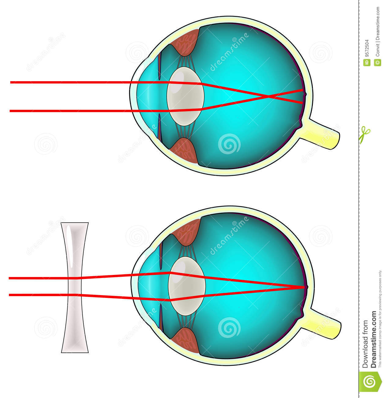 hight resolution of diagram of a shortsighted human eye corrected with a concave lens