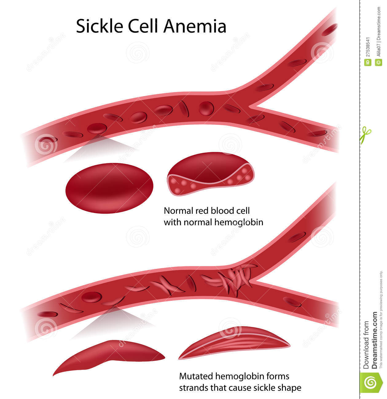 Sickle Cell Disease Stock Image