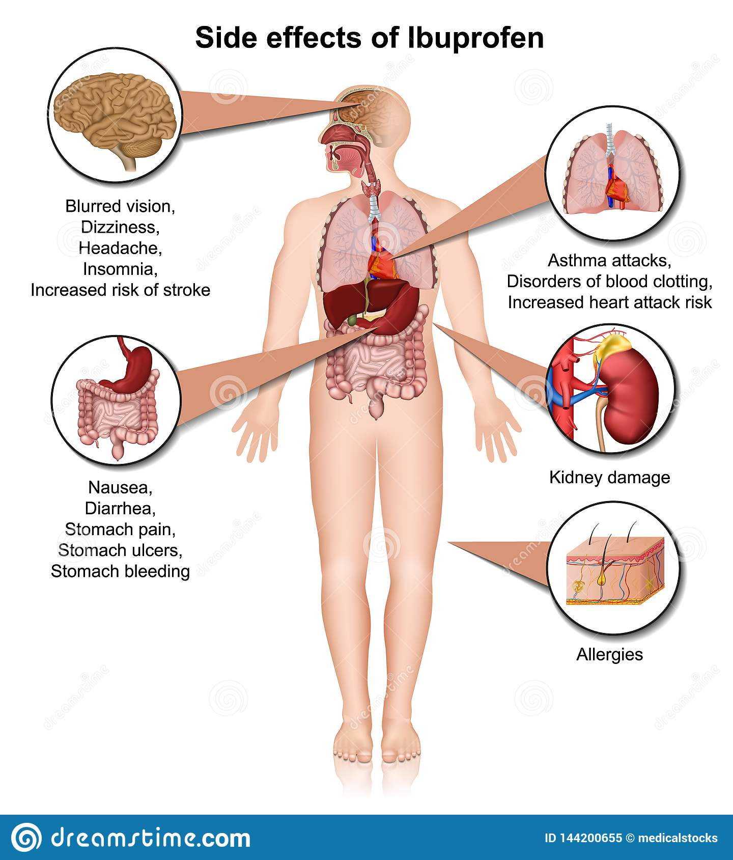 Side Effects Of Ibuprofen 3d Medical Illustration On White ...
