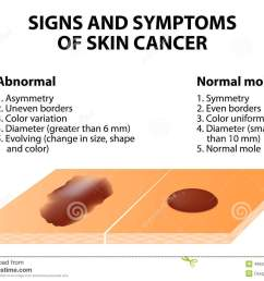 signs and symptoms of skin cancer abcde guideline a simple and easy way to check skin for suspicious growths  [ 1300 x 1028 Pixel ]
