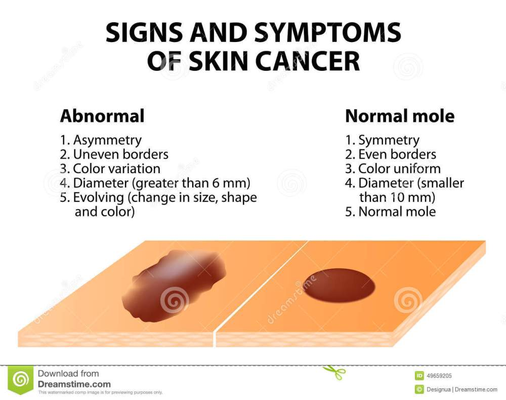 medium resolution of signs and symptoms of skin cancer abcde guideline a simple and easy way to check skin for suspicious growths