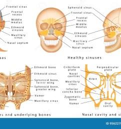 human anatomy sinus diagram anatomy of the nose nasal cavity bones anatomy of paranasal sinuses sinusitis it is the inflammation of the maxillary  [ 1300 x 870 Pixel ]