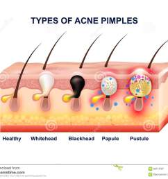 acne diagram of the face download [ 1300 x 1101 Pixel ]