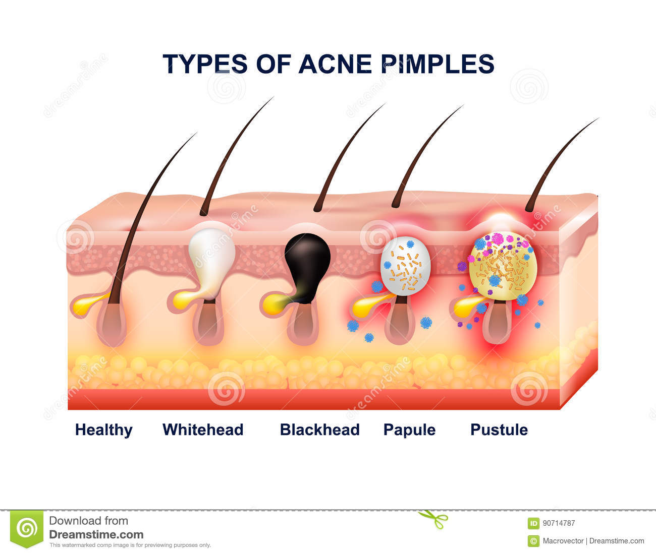 hight resolution of acne diagram of the face download