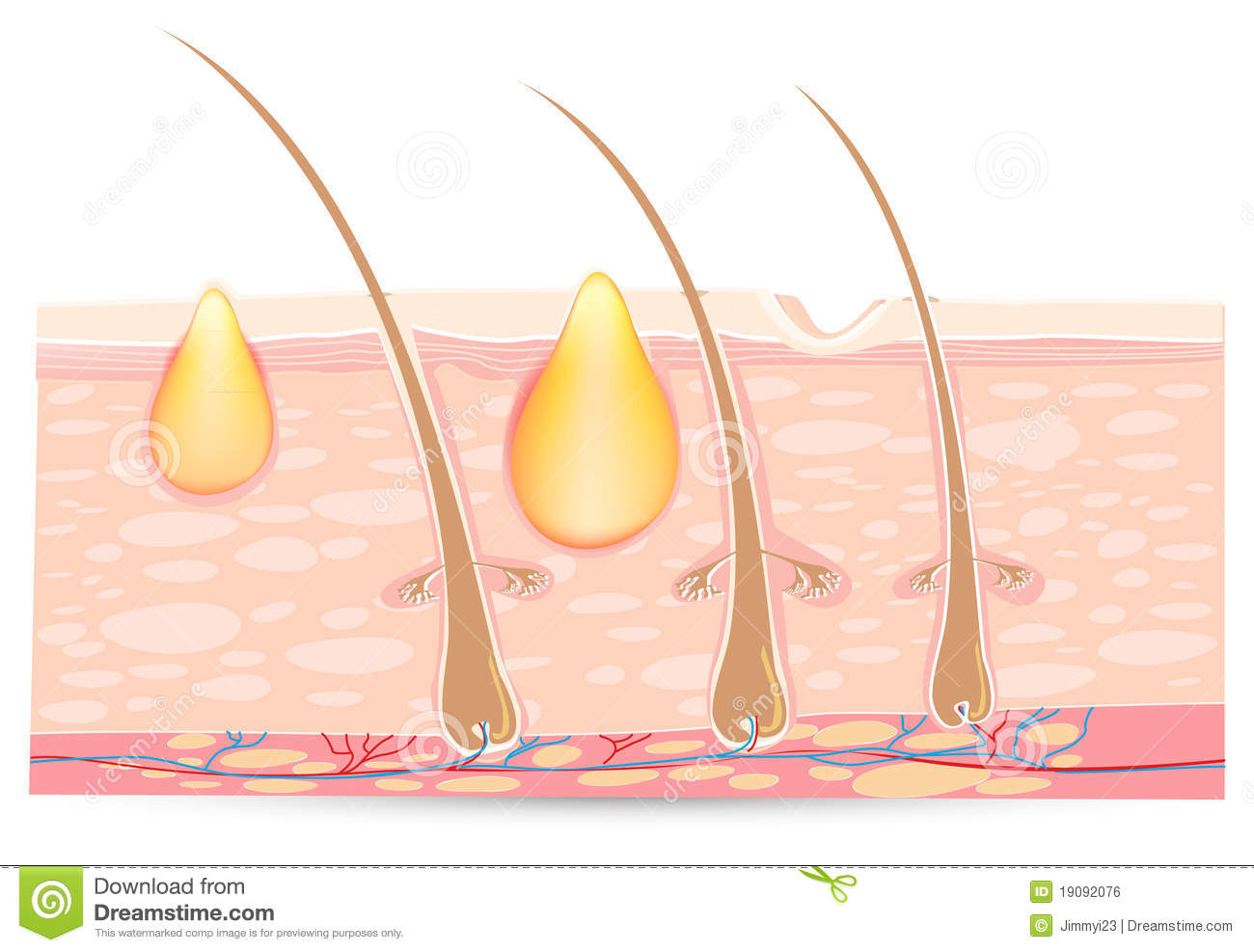 what causes acne diagram starter relay wiring of epidermoid cyst seborrheic keratosis