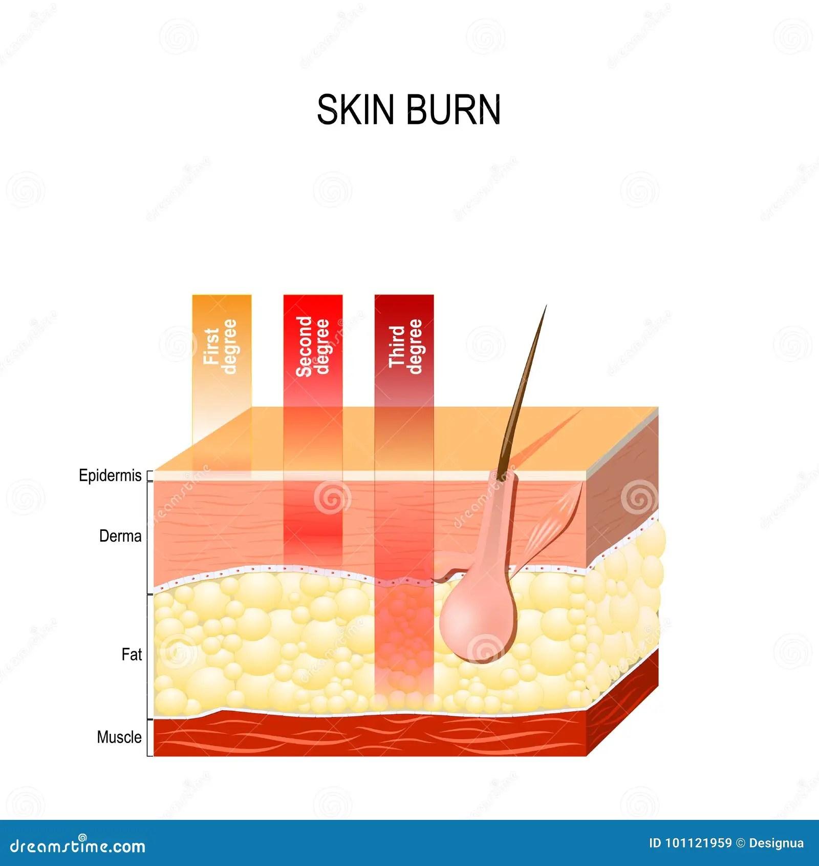 hight resolution of skin burn diagram wiring diagram for you burn damage skin diagram skin burn diagram