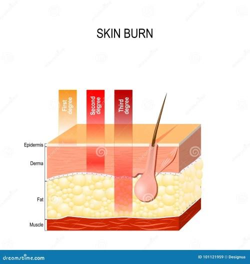 small resolution of skin burn diagram wiring diagram for you burn damage skin diagram skin burn diagram