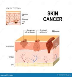 body diagram skin cancer wiring diagram expert body diagram skin cancer [ 1300 x 1390 Pixel ]