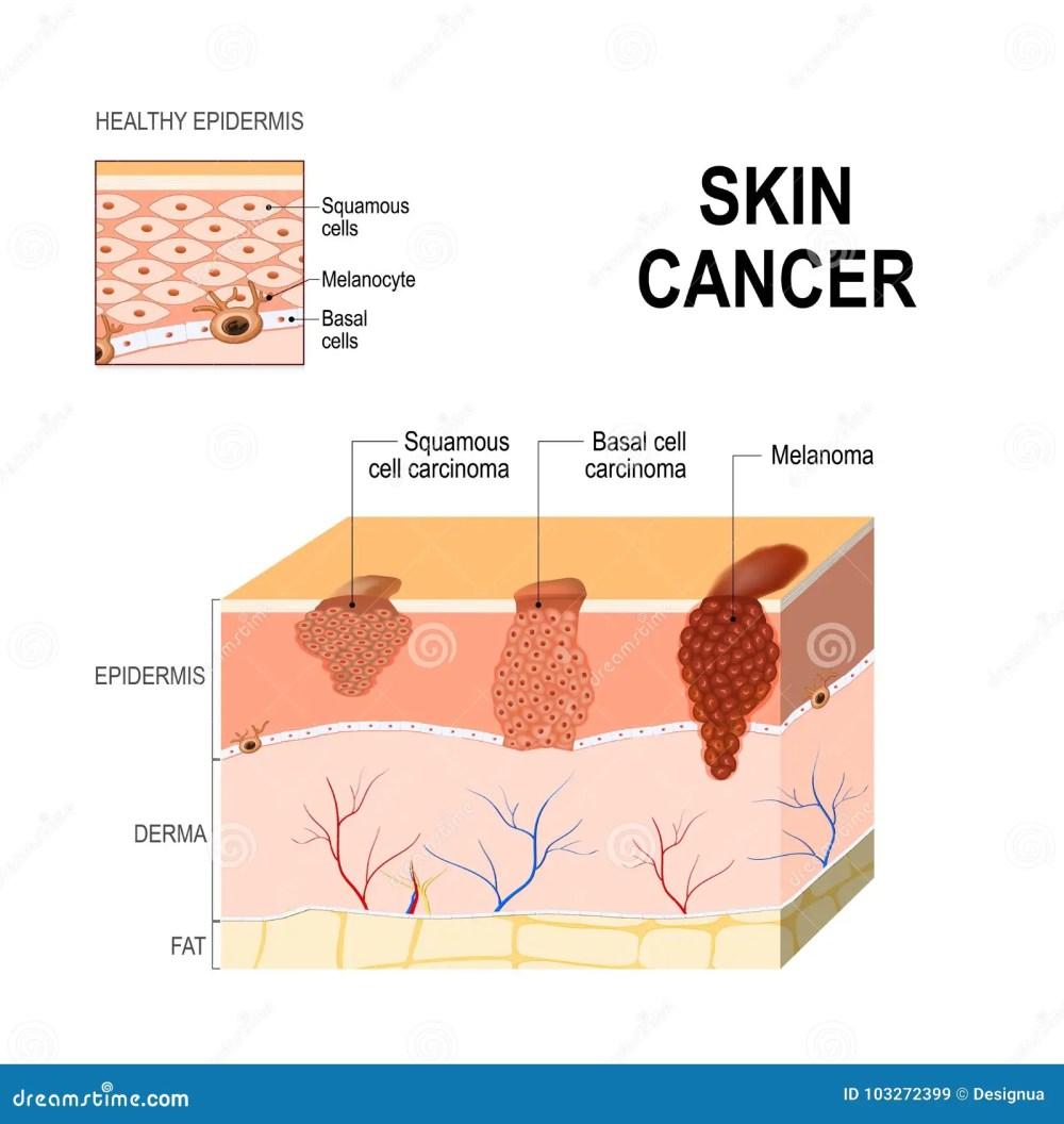 medium resolution of body diagram skin cancer wiring diagram expert body diagram skin cancer