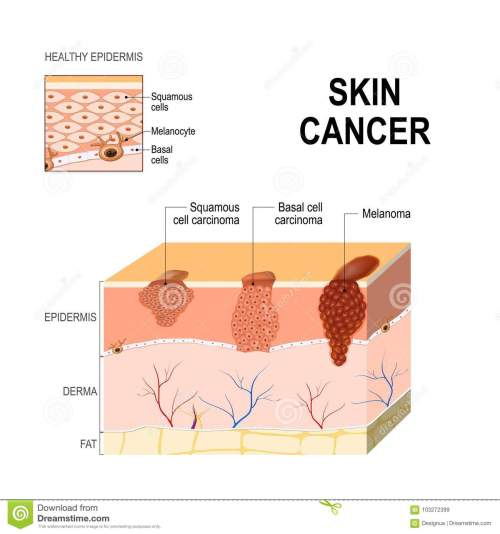small resolution of body diagram skin cancer wiring diagram expert body diagram skin cancer