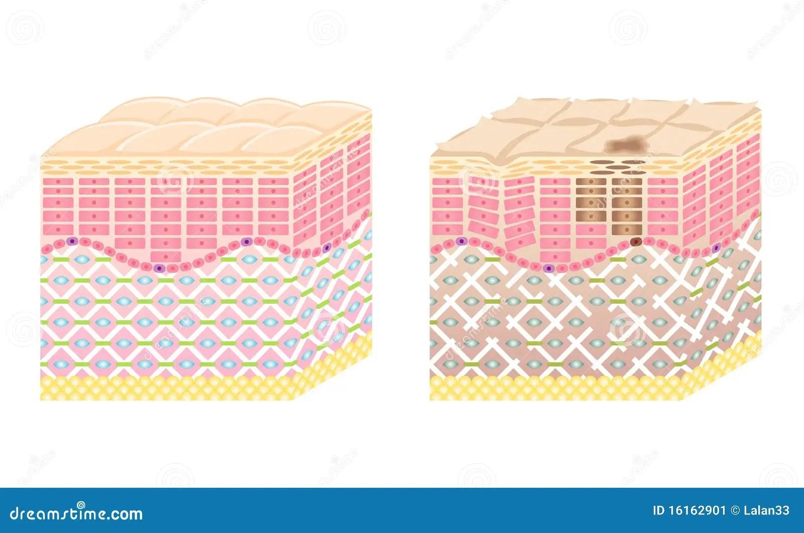 Skin Cross Section Stock Vector Illustration Of Facial