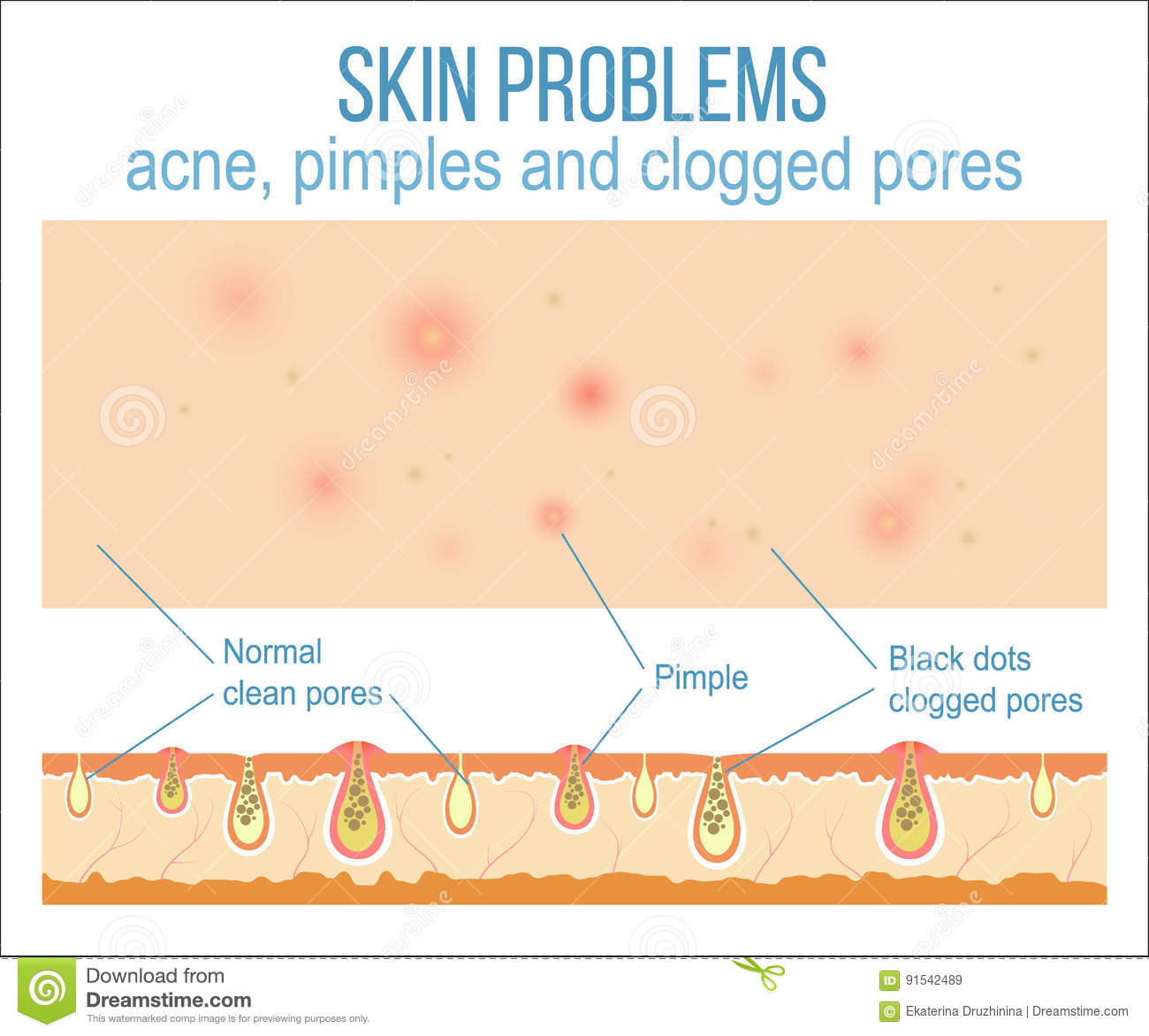 acne face diagram ford 351w firing order skin and pores stock vector image 91542489