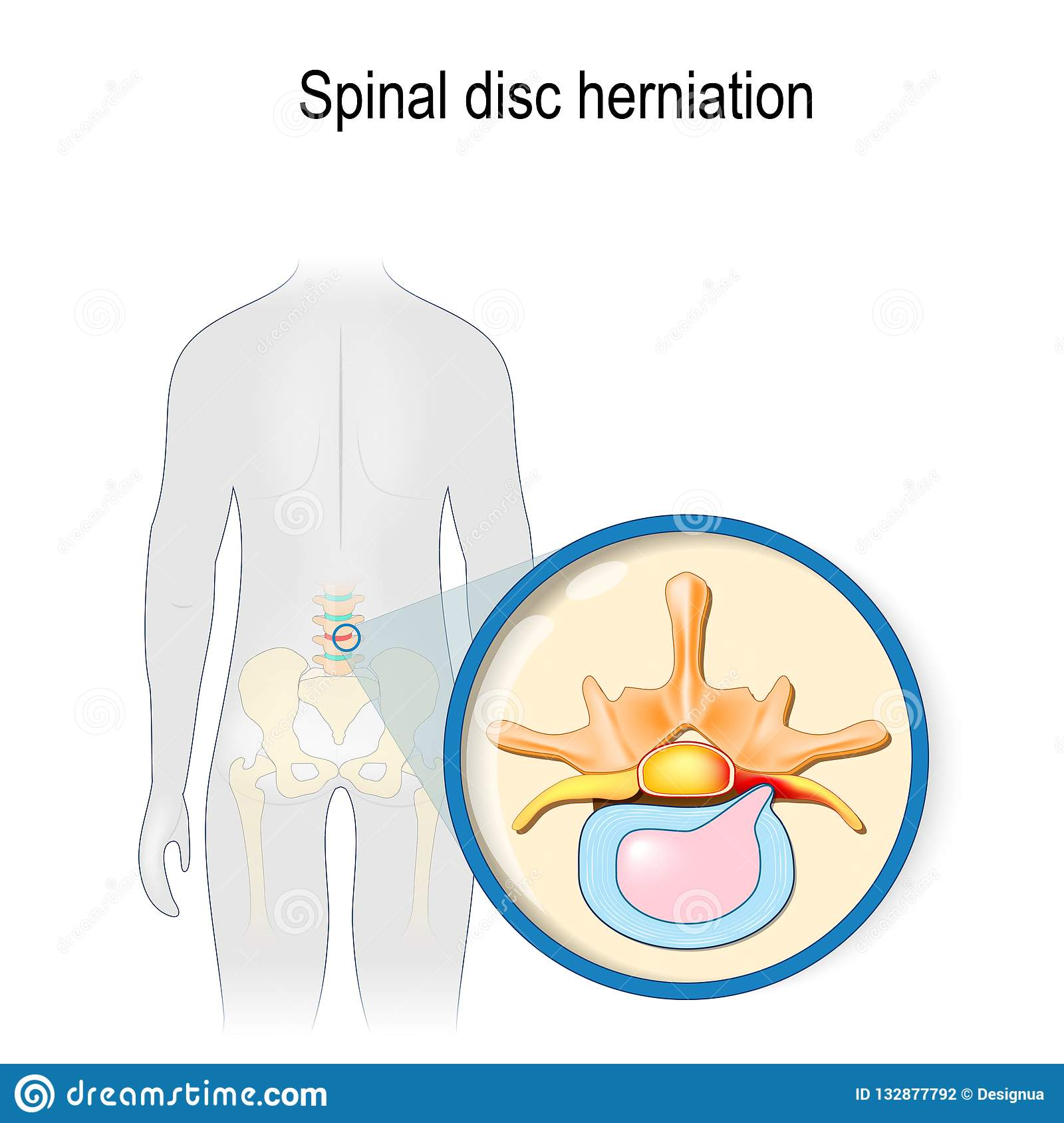 hight resolution of spinal disc herniation back pain human silhouette with highlighted red color lumbar spine and pelvis prolapse of intervertebral disc close up