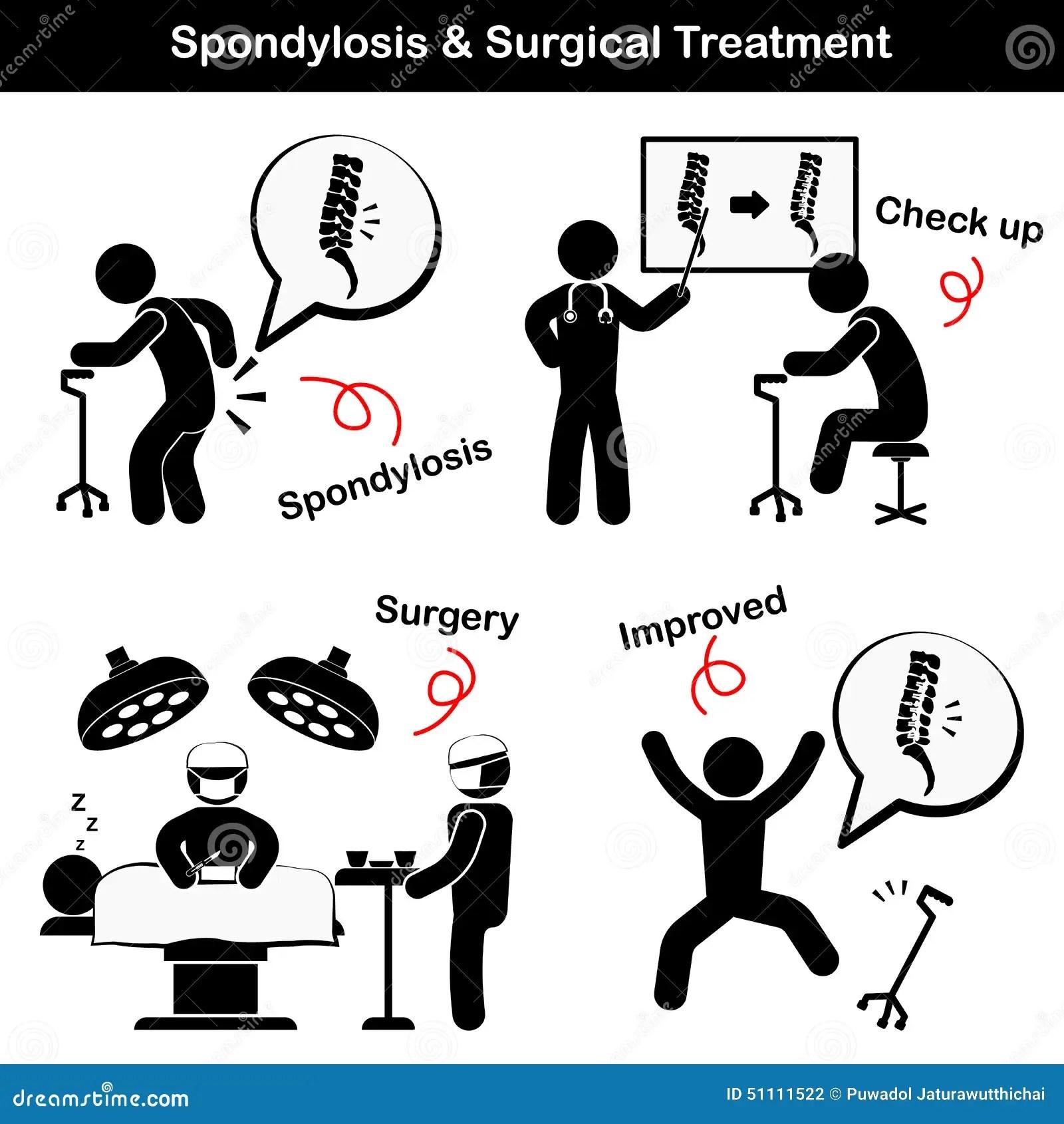 Spondylose Und Wirbelgleiten Und Chirurgische Behandlungs