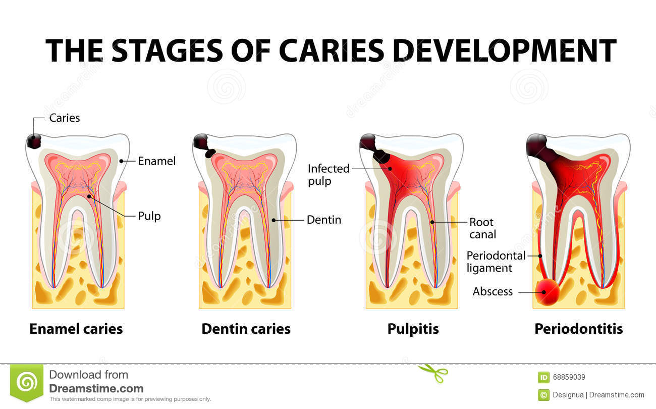 diagram for 5 gum gigabit wiring stages of caries development stock vector image 68859039