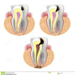 Human Tooth Diagram Sig Sauer P226 Parts The Stages Of Caries Development Cartoon Vector | Cartoondealer.com #69343223