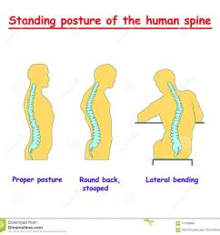 standing posture of the human spine defects of the human spine correct alignment of human body in standing posture vector [ 1300 x 1270 Pixel ]
