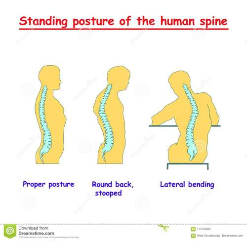small resolution of standing posture of the human spine defects of the human spine correct alignment of human body in standing posture vector