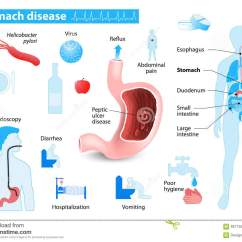 Pathophysiology Of Peptic Ulcer Disease Diagram Caravan Trailer Plug Wiring Diseases The Stomach And Gastritis