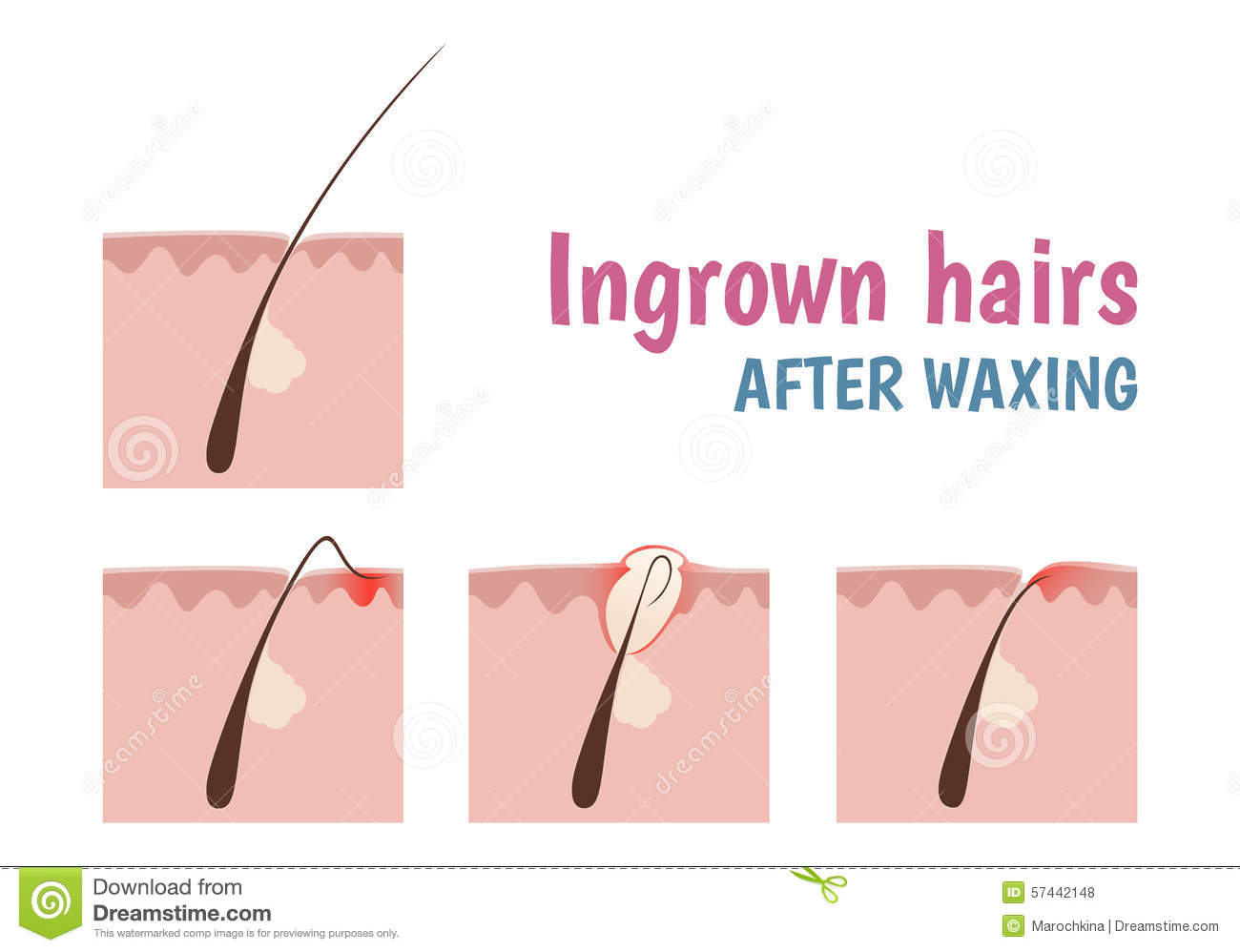 hormonal acne diagram household wiring uk structure of the hair follicle stock vector illustration