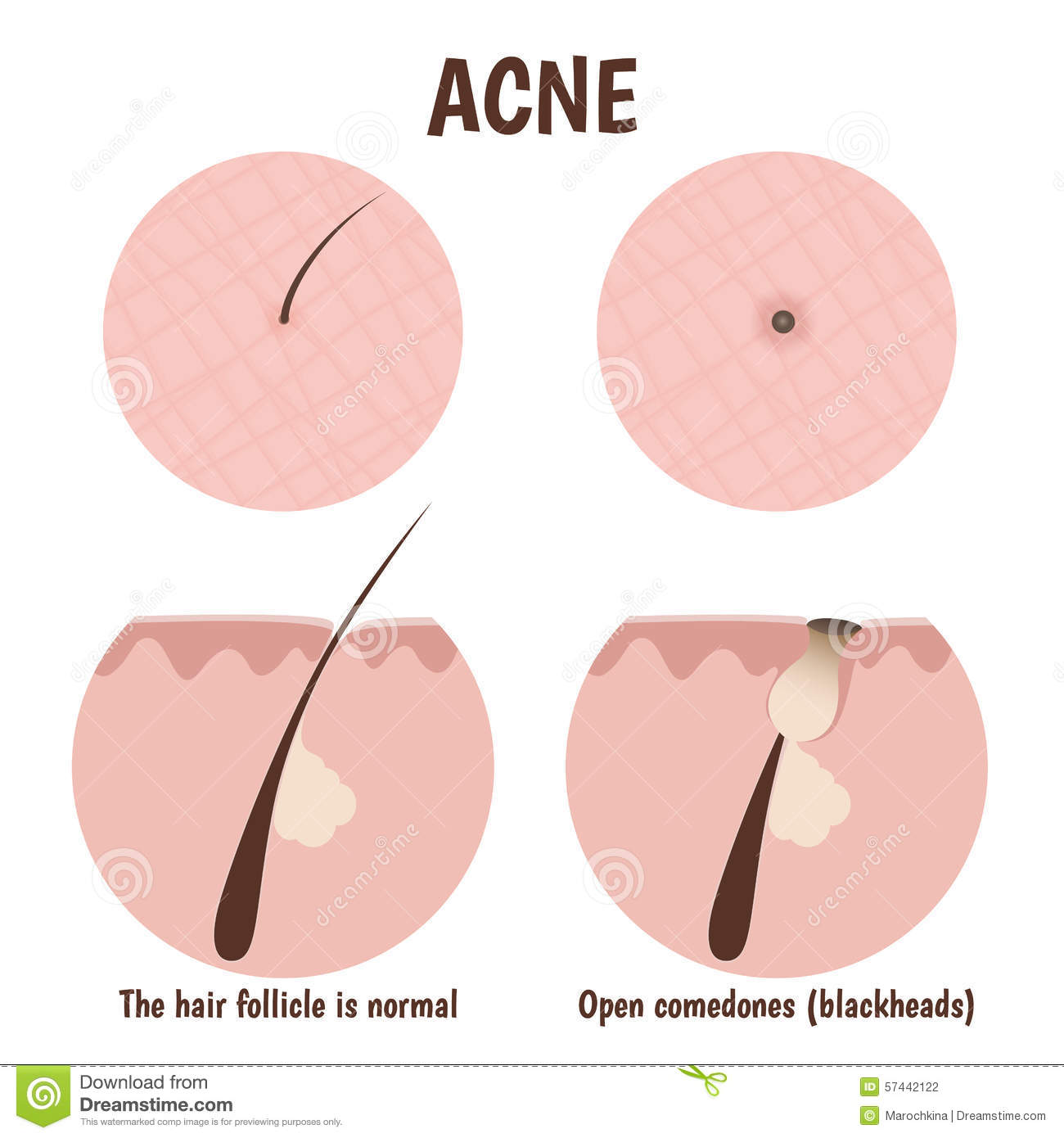 Hair Follicle Section Vectored Vector Illustration