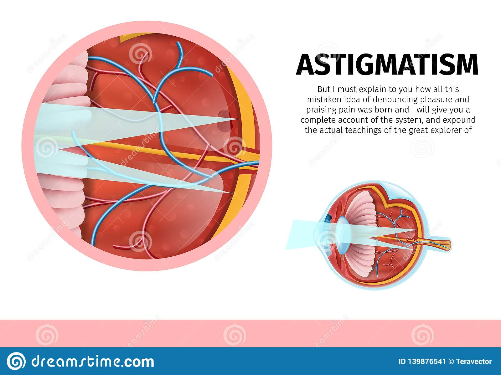 hight resolution of human eye anatomy banner structure of human eye with astigmatism disease cross section with components lens pupil eye chamber retina optic nerve