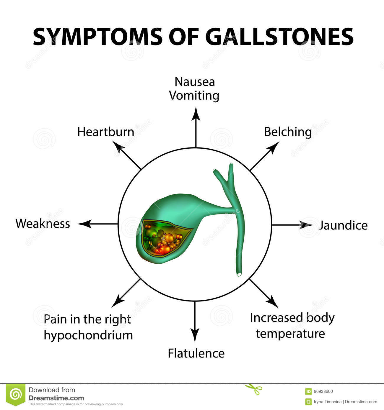 Symptoms Of Stones In The Gallbladder Infographics