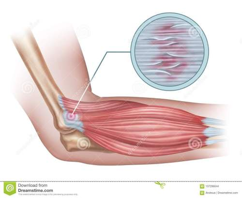 small resolution of tennis elbow diagram showing a detail of the damaged tendon tissue digital illustration