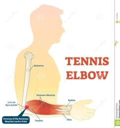 tennis elbow medical fitness anatomy vector illustration diagram with arm bones joint and muscles  [ 1287 x 1300 Pixel ]