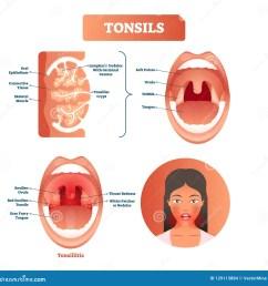 tonsillitis labeled structure diagram  [ 1600 x 1661 Pixel ]