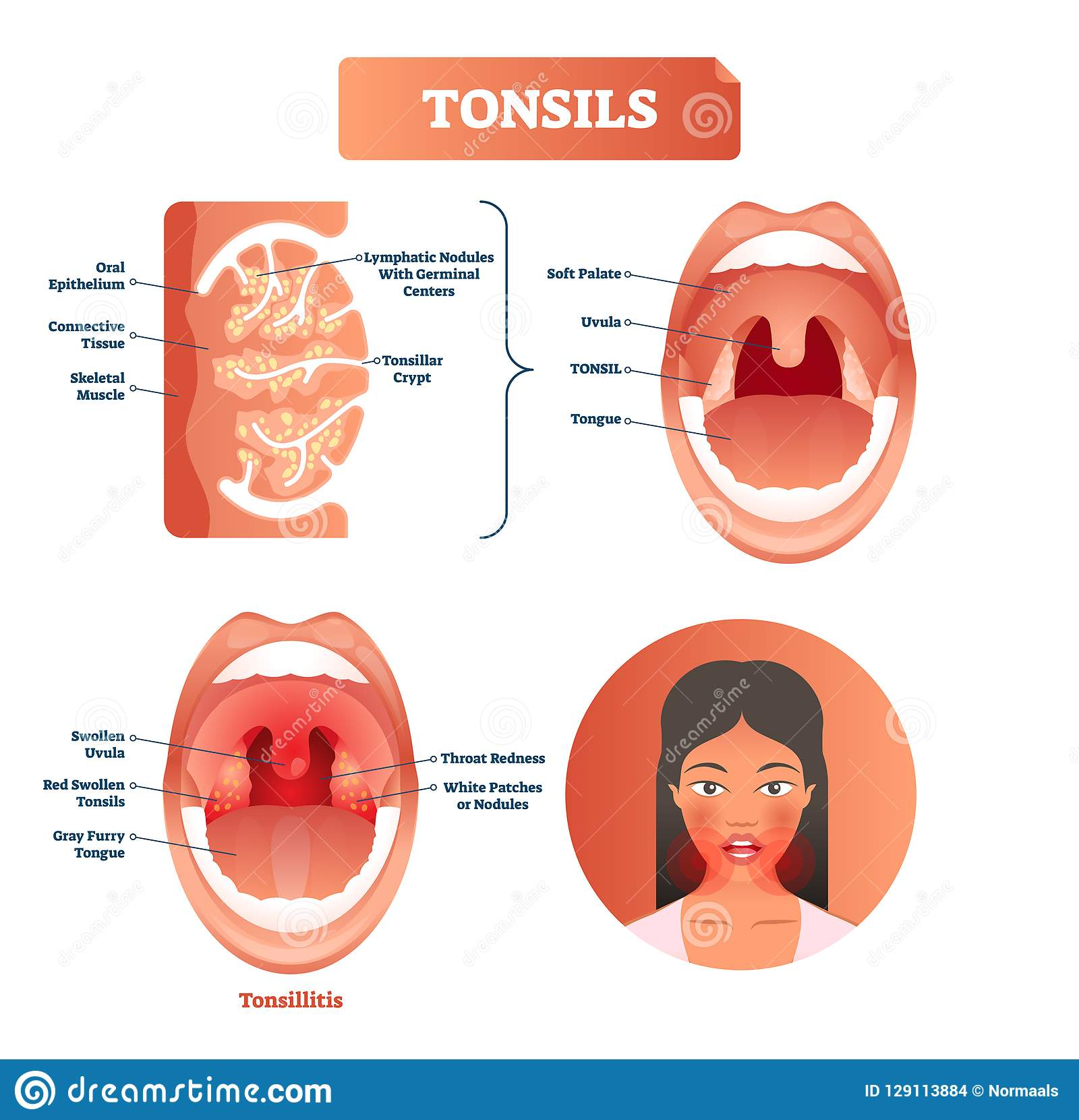 hight resolution of tonsillitis labeled structure diagram