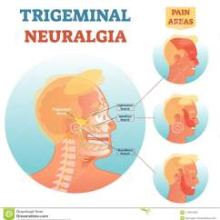 Facial Trigeminal Nerve Diagram 2016 Ford F 150 7 Pin Trailer Wiring Neuralgia Medical Cross Section Anatomy Vector