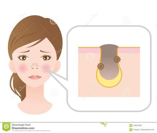 small resolution of troubled face woman with clogged pores on her nose blackhead and skin diagram showing clogged pores skin care and beauty concept