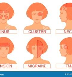 type of headache pain [ 1300 x 1008 Pixel ]