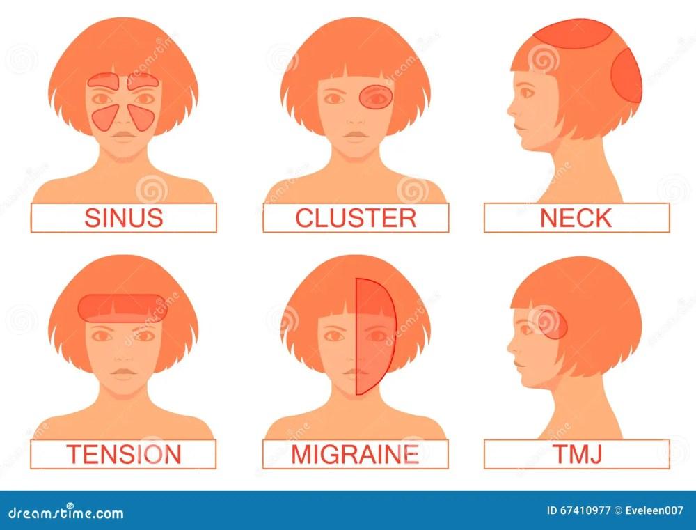 medium resolution of type of headache pain