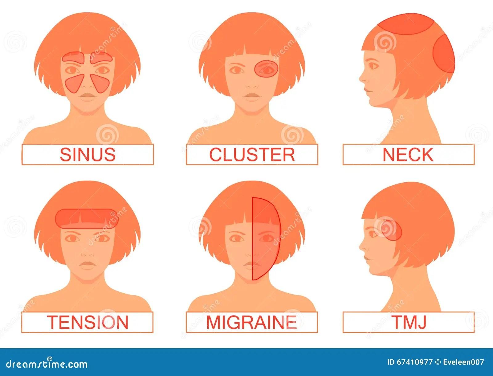 hight resolution of type of headache pain