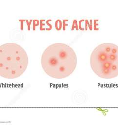 types of acne diagram illustration vector on white background b [ 1300 x 610 Pixel ]