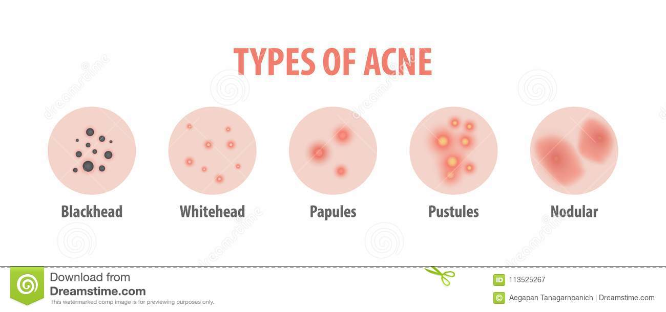 hight resolution of types of acne diagram illustration vector on white background b