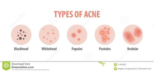 small resolution of types of acne diagram illustration vector on white background b