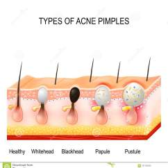 Diagram For Pimples On Face Sr20det Engine Harness Wiring Types Of Acne Stock Vector Illustration