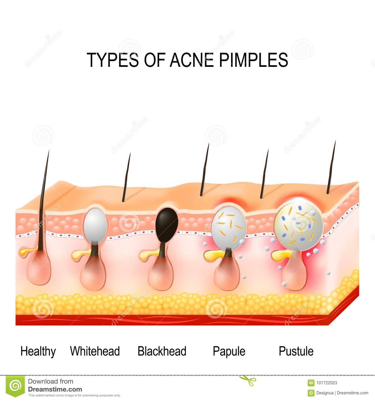 hight resolution of types of acne pimples stock vector illustration of physiology diagram of polio diagrams types of pimples