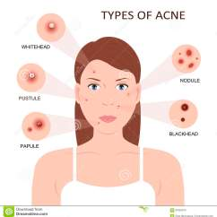Pimples On Cheek Diagram Bosch O2 Sensor Wiring Types Of Acne And Vector Illustration Cartoon