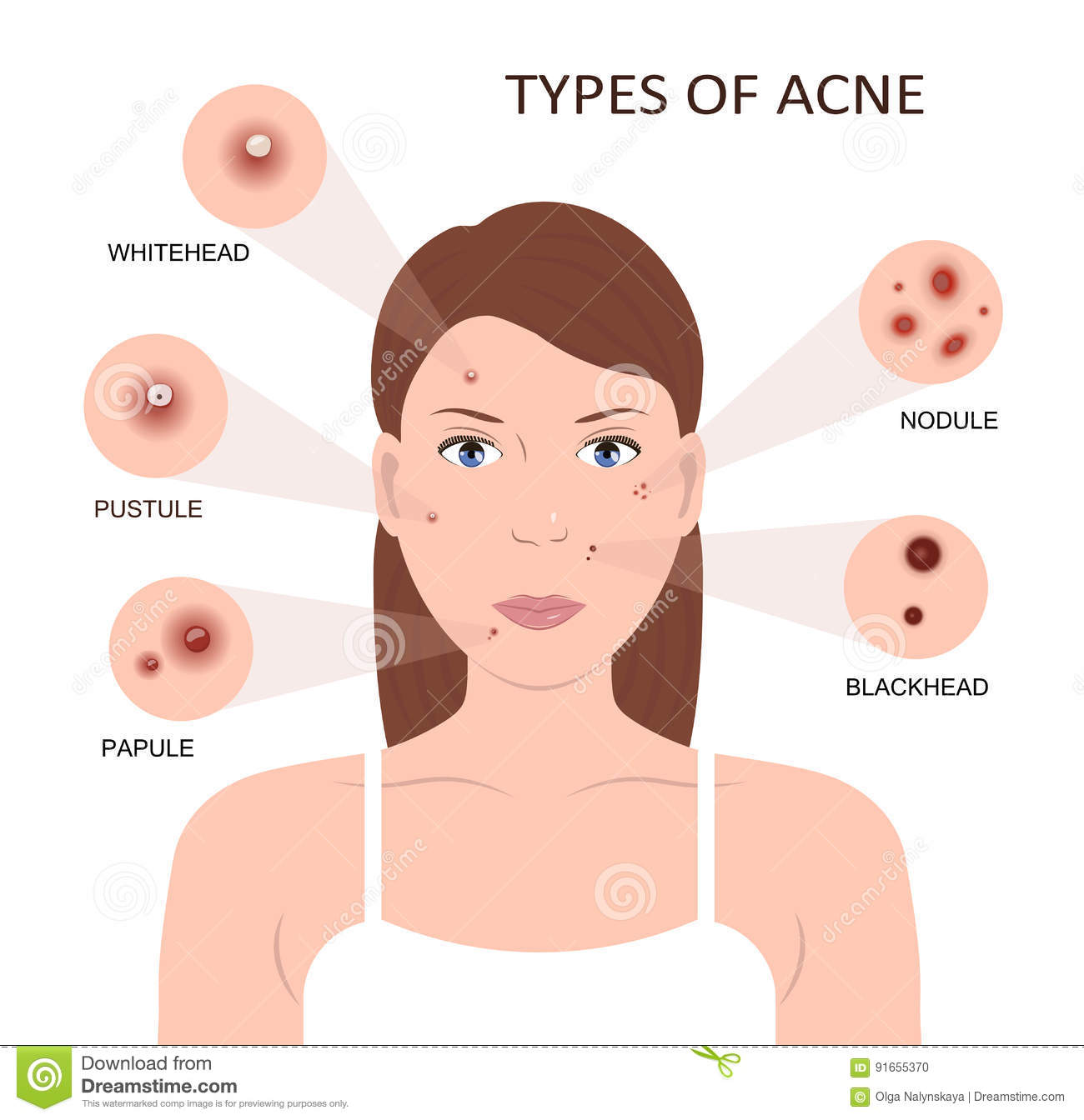 diagram for pimples on face 2002 chevy cavalier wiring radio types of acne woman with stock vector
