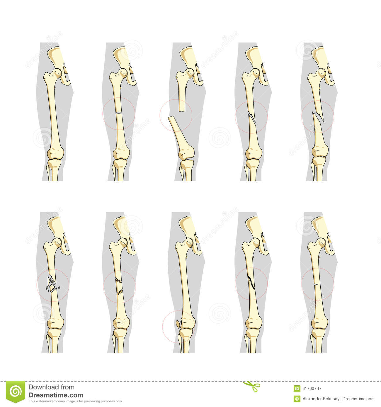 Types Of Bone Fractures Medical Educational Vector Cartoon