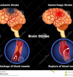 color illustration of the anatomy of human brain stroke and diagram of human brain hemorrhage [ 1300 x 1003 Pixel ]