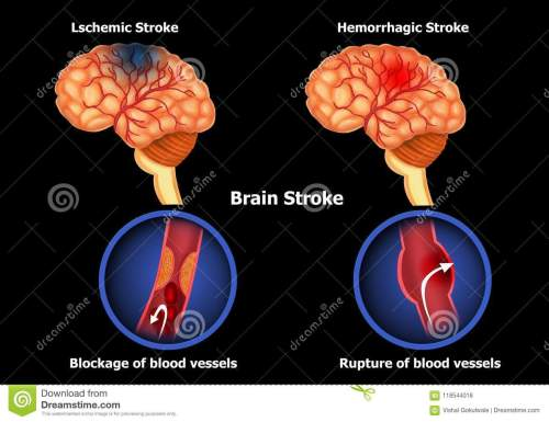 small resolution of color illustration of the anatomy of human brain stroke and diagram of human brain hemorrhage