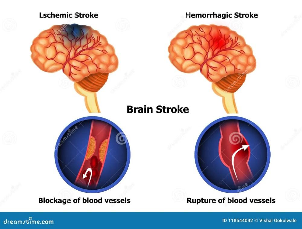 medium resolution of color illustration of the anatomy of human brain stroke and diagram of human brain hemorrhage