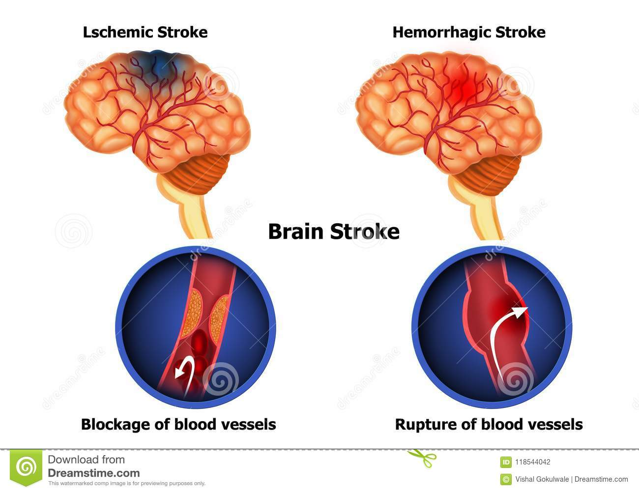 hight resolution of color illustration of the anatomy of human brain stroke and diagram of human brain hemorrhage