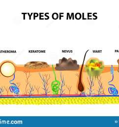 mole anatomical structure of the skin and hair infographics vector illustration on isolated background [ 1600 x 1050 Pixel ]