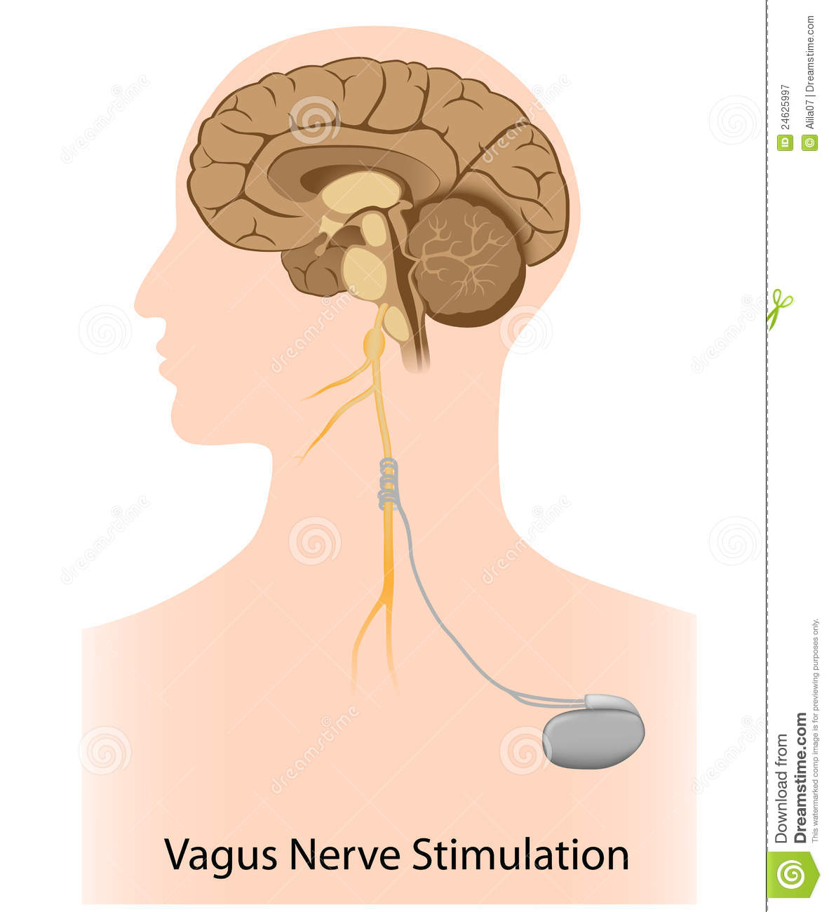 vagus nerve diagram dia editor review stimulation therapy stock vector image 24625997